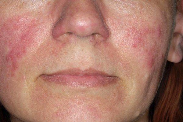 az arcon a bőr száraz, vörös foltokkal a bőr viszket és vörös foltok jelennek meg a testen