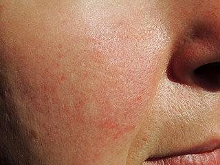 anyajegyre hasonlító kis vörös foltok a bőrön vaszkuláris vörös folt az arcon