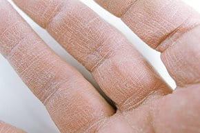 hogyan lehet gyógyítani az ideg pikkelysömörét hogyan kell kezelni a pontszerű pikkelysömör