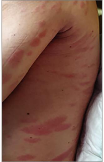 vörös foltok a lábakon onkológiával