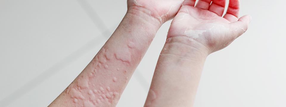 vörös foltok hámlással a testen hogyan kell kezelni pikkelysömör kezelésére, mint