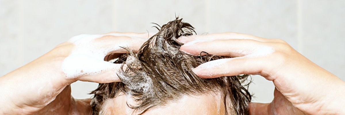 hogyan lehet eltávolítani a kéregeket a fején a pikkelysömörből