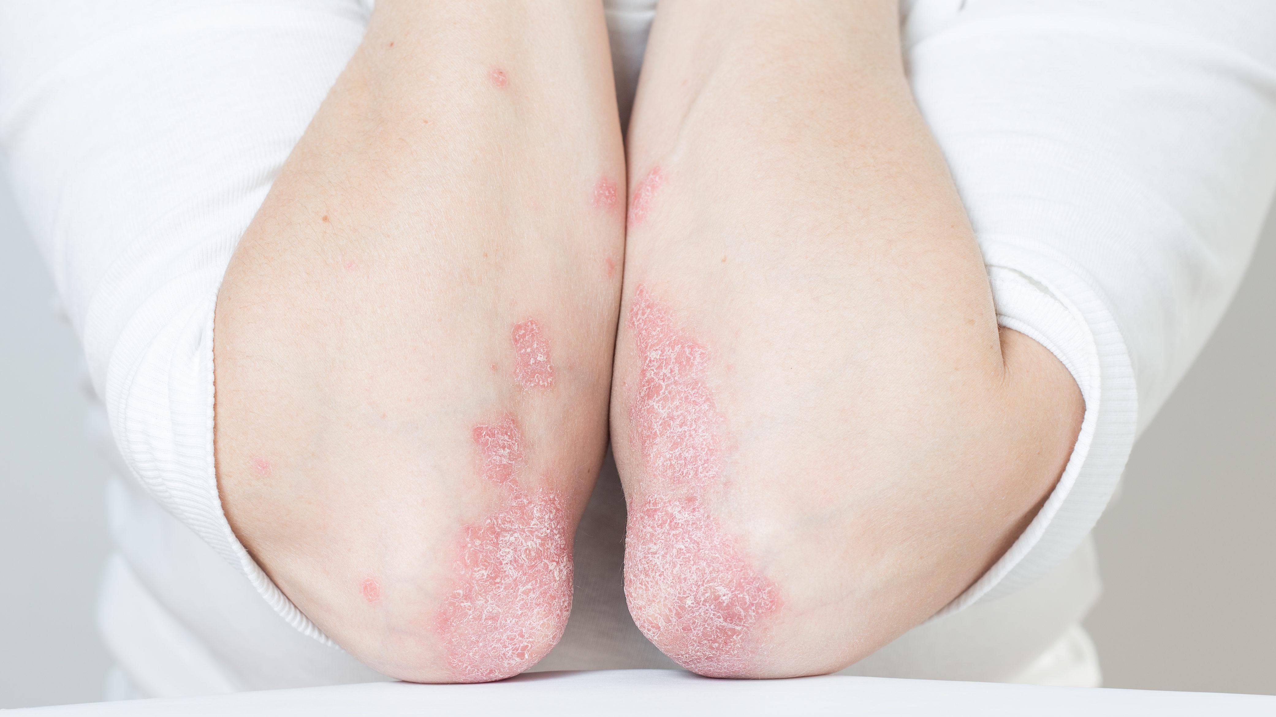 vörös foltok a bőrön fotó ok pikkelysömör kezelése Dimexidummal
