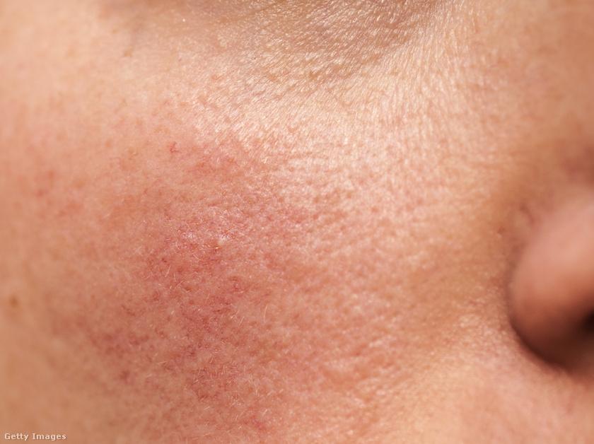 vörös foltok az arcon az antibiotikumoktól tenyerén vörös foltok viszkető fotó