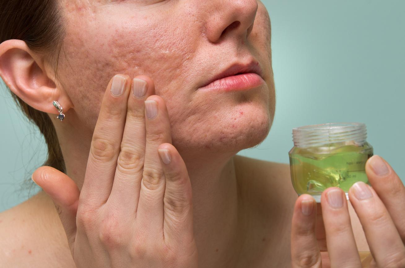 hogyan lehet gyógyítani az arcon lévő vörös foltokat a bőr viszket és vörös foltok jelennek meg a testen