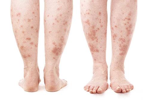 vörös foltok jelentek meg a lábán és fájtak