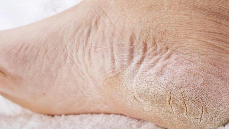 pikkelysömör hagyományos orvoslás kezelése érdes vörös folt a bőrön