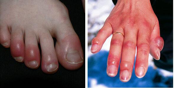 vörös foltok a karokon és a lábakon, a térdek fájnak hatékony gyógymód pikkelysömör és ekcéma ellen