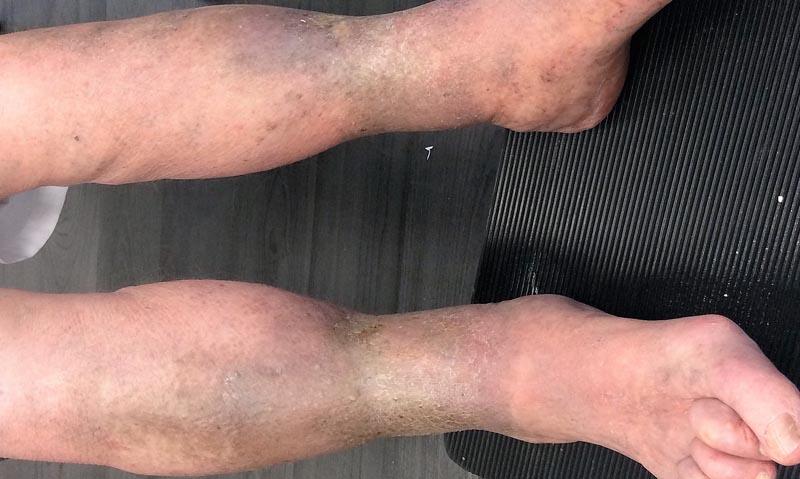 vénák a lábakon vörös foltok