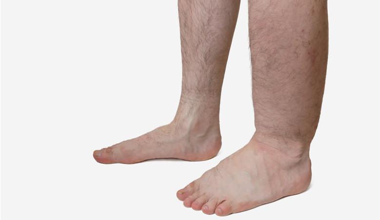 a lábak duzzanata és alatta vörös foltok
