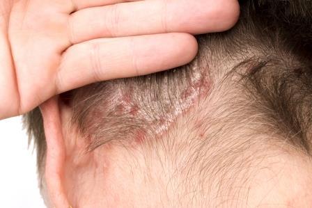 hogyan lehet gyógyítani a korpát a fej pikkelysömörén