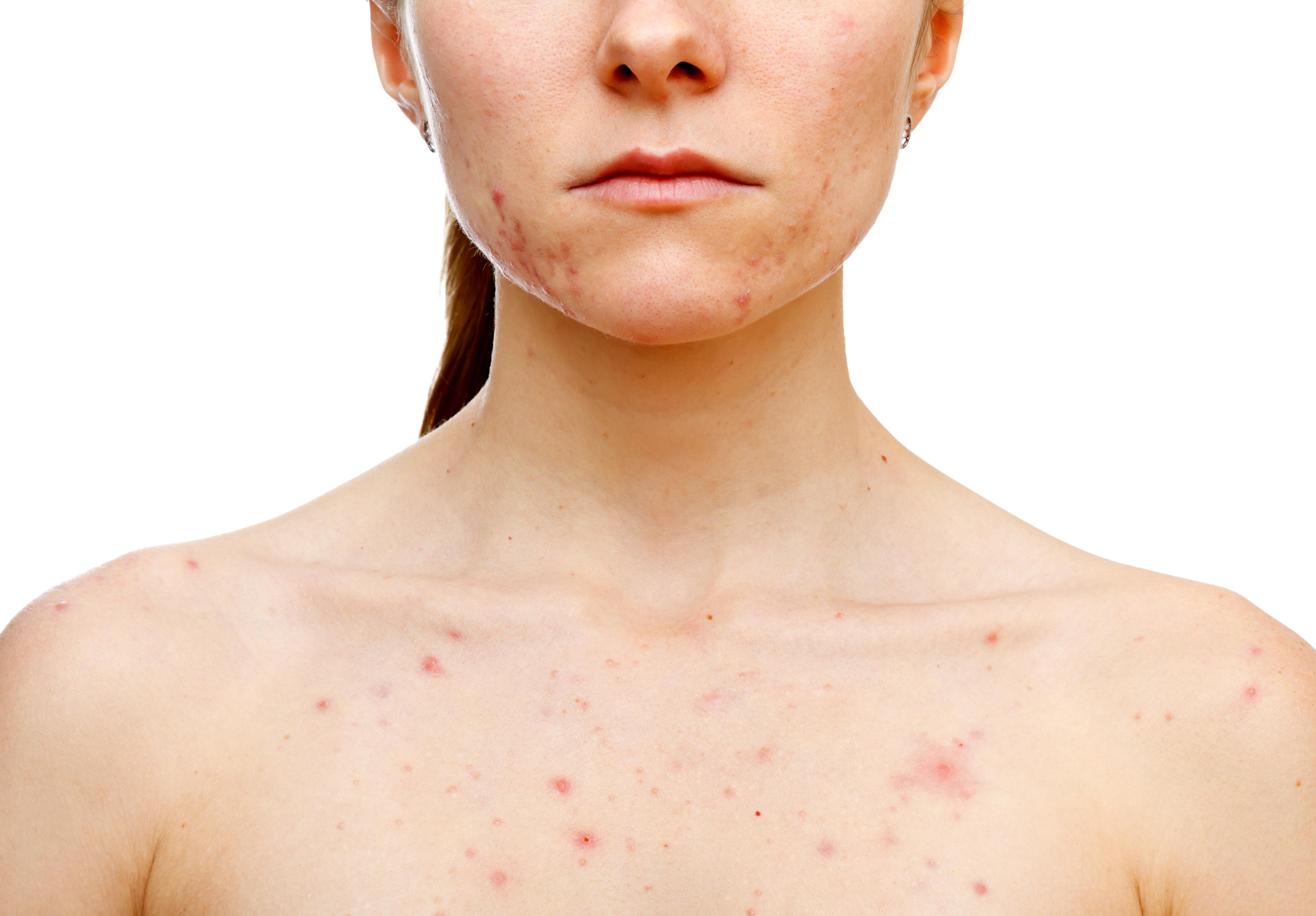 homeopátia a pikkelysömör és a seborrheás dermatitis kezelésében vörös foltok az arcon hámló bőrrel