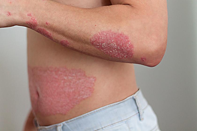 Tünetmentes lehet a pikkelysömör nyáron: ezt az 5 tanácsot kell betartani - Egészség | Femina