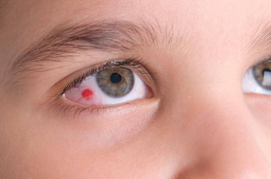ha a szem alatt vörös pikkelyes foltok vannak bőr alatti vörös foltok a lábakon fotó