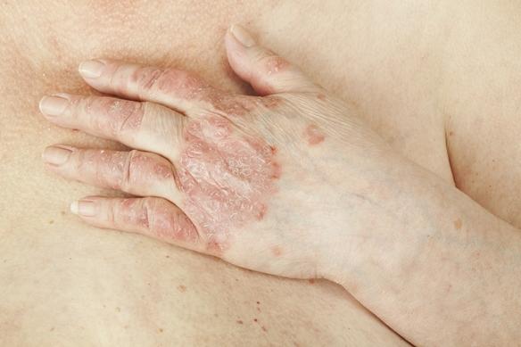 hogyan lehet pikkelysömör kezelésére rohadt ujjal vörös foltok a kezeken viszketnek a nap után