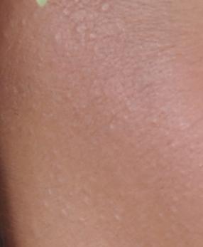 a lábakon lévő kis piros foltok egy nagy foltokká egyesülnek Edgar Cayce a pikkelysmr kezelsrl
