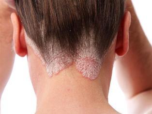 A pikkelysömör tünetei és kezelése - Egészség | Femina
