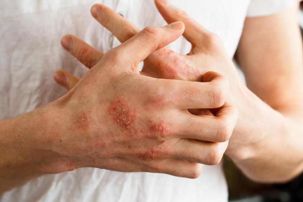 hogyan lehet gyógyítani az ekcéma pikkelysömör kontakt dermatitisz a kezeken a fejbőr piros foltokat viszket