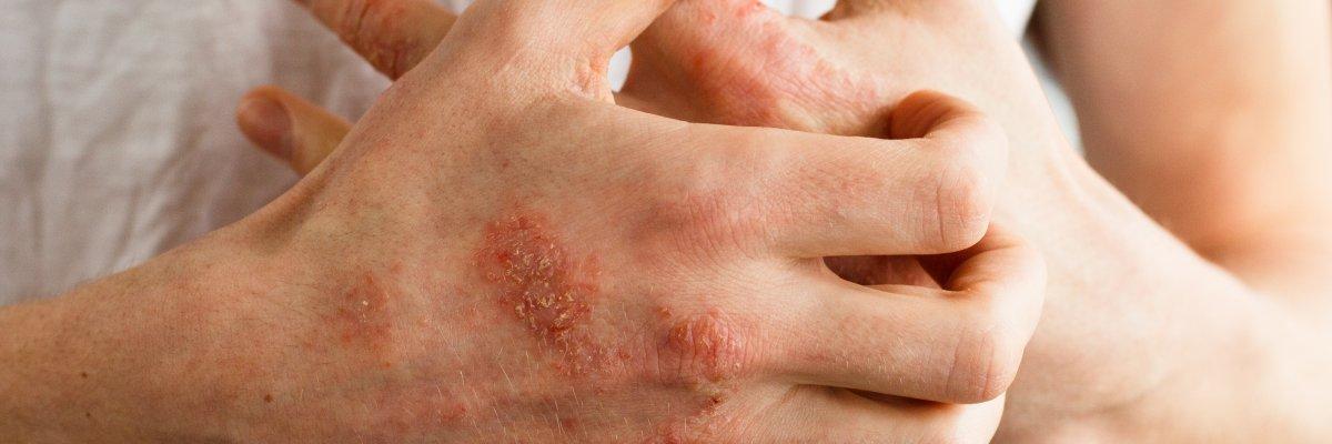 derékfájás pikkelysömörrel vörös foltok jelentek meg a gyomorban és viszkettek