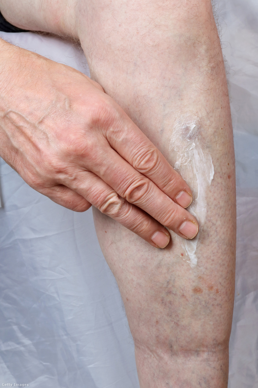 irritáció a lábon vörös foltok formájában