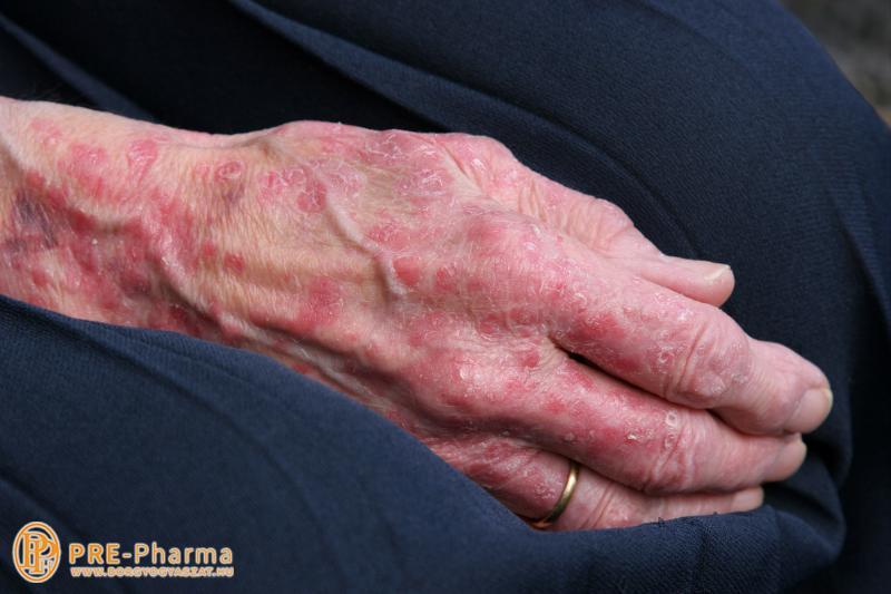 kezeld pikkelysömör a tenyereken a bőr kenőcsének helyreállításához pikkelysömörhöz