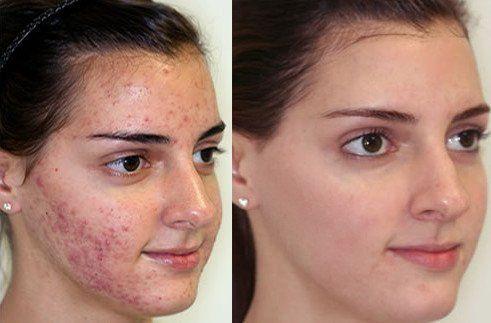 bőr pikkelysömör tüneteinek kezelése gél pikkelysömör ellen