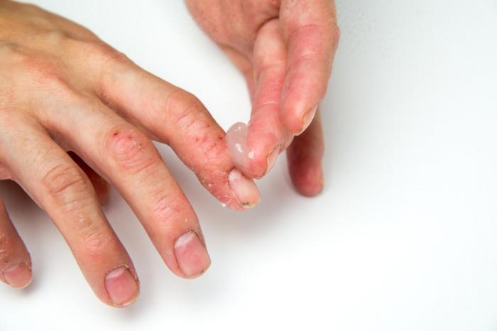 Methotrexate kezelése pikkelysömör vélemények