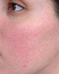 hámló bőr az arcon és vörös foltok borítják