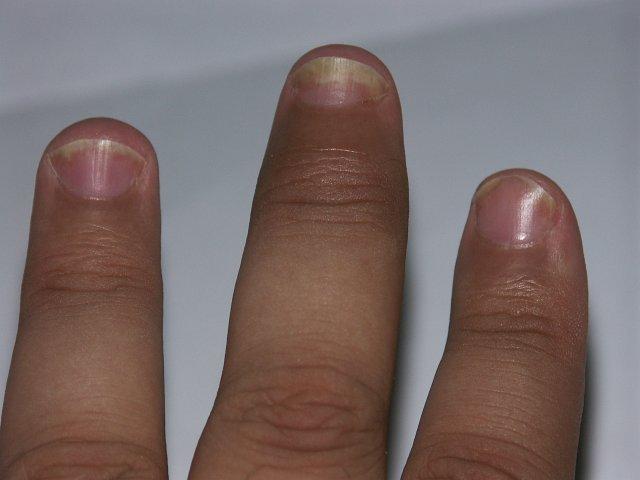 Aranyér gyulladás? Végbélrepedés? Anopapillitis, cryptitis. - Aranyér blog