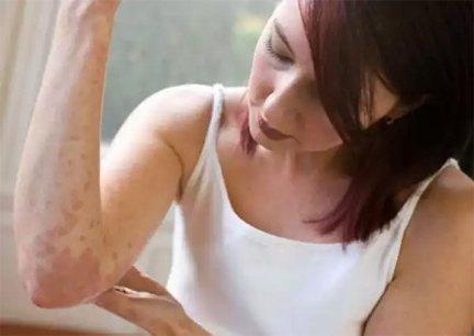sok apró piros folt a kezén gyógyszerek pikkelysömör súlyosbodásához