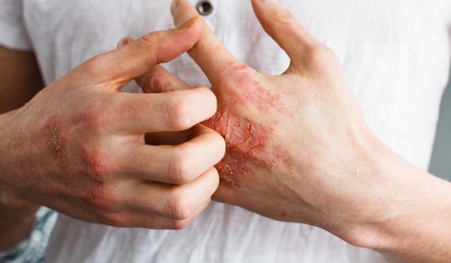 pikkelysömör kezelése október