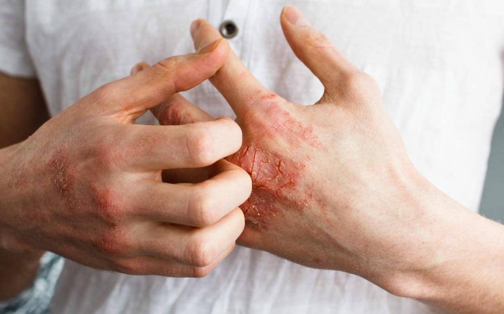 pikkelysömör átvitel nagyszerű élni vörös foltok hámlanak az arcon és a testen
