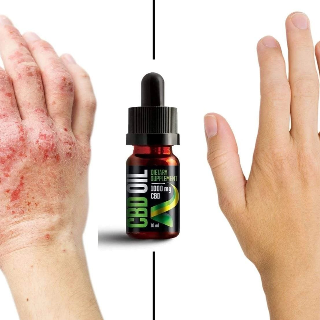 gyógyítható-e gyógynövényekkel a pikkelysömör vörös-barna foltok a lábakon fotó