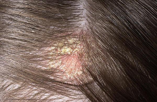 sebek vagy vörös foltok jelennek meg a fejbőrön gyógyszer pikkelysömörhöz a fejben