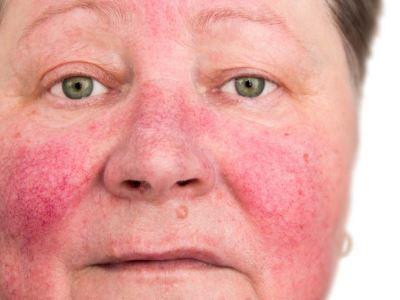 szeborreás pikkelysömör az arcon kezelés