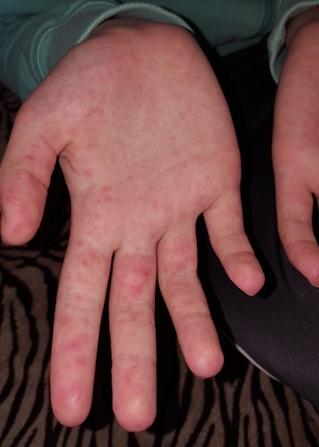 száraz vörös folt az ujján