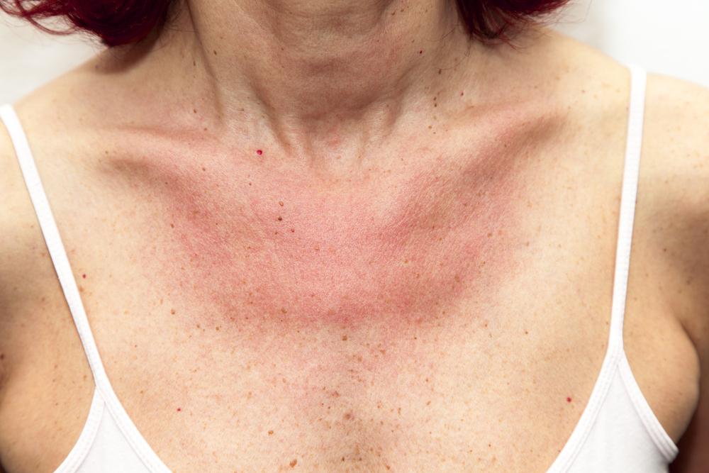 vörös foltok az arcon, a nyakon és a dekoltázson népi módszerekkel kezeljük a pikkelysömör