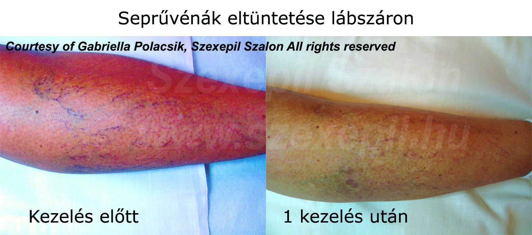 zuzmó vörös foltok a testkezelésen népi gyógymódok a fejbőr pikkelysömörét