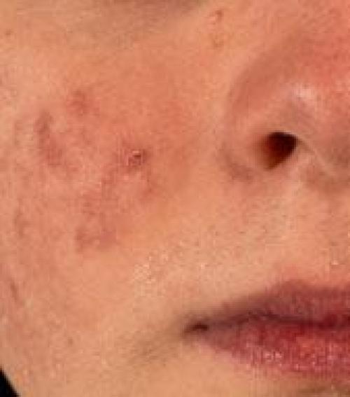 vörös folt az arcon a szem közelében