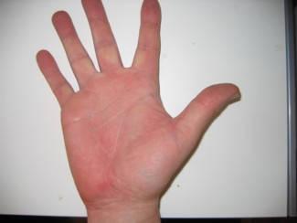 vörös folt jelent meg a kézen az ujjak között kenőcsök pikkelysömörhöz rendelésre