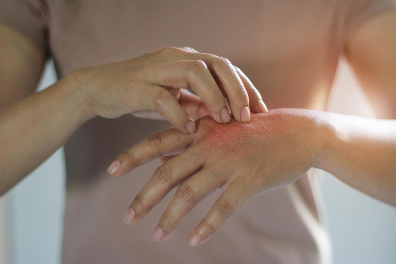 vörös folt az ujjak között hogyan kell kezelni)