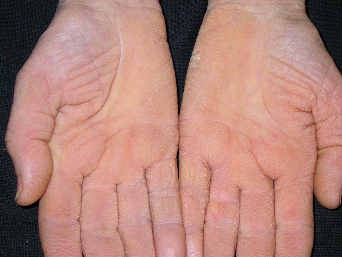 a csuklóján vörös folt viszket remicade pikkelysömör kezelésére