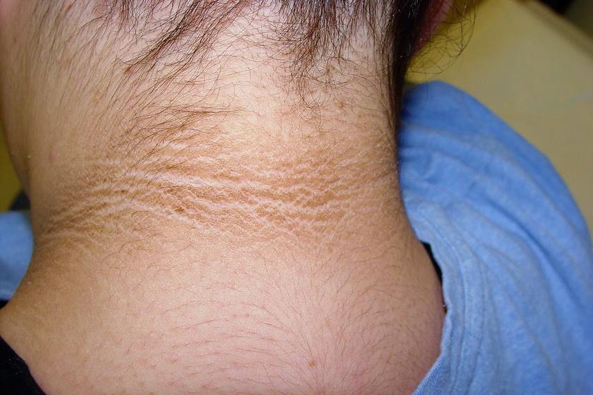 vörös foltok a karokon és a hónaljon pikkelysömör okoz tüneteket kezelés népi gyógymódokkal