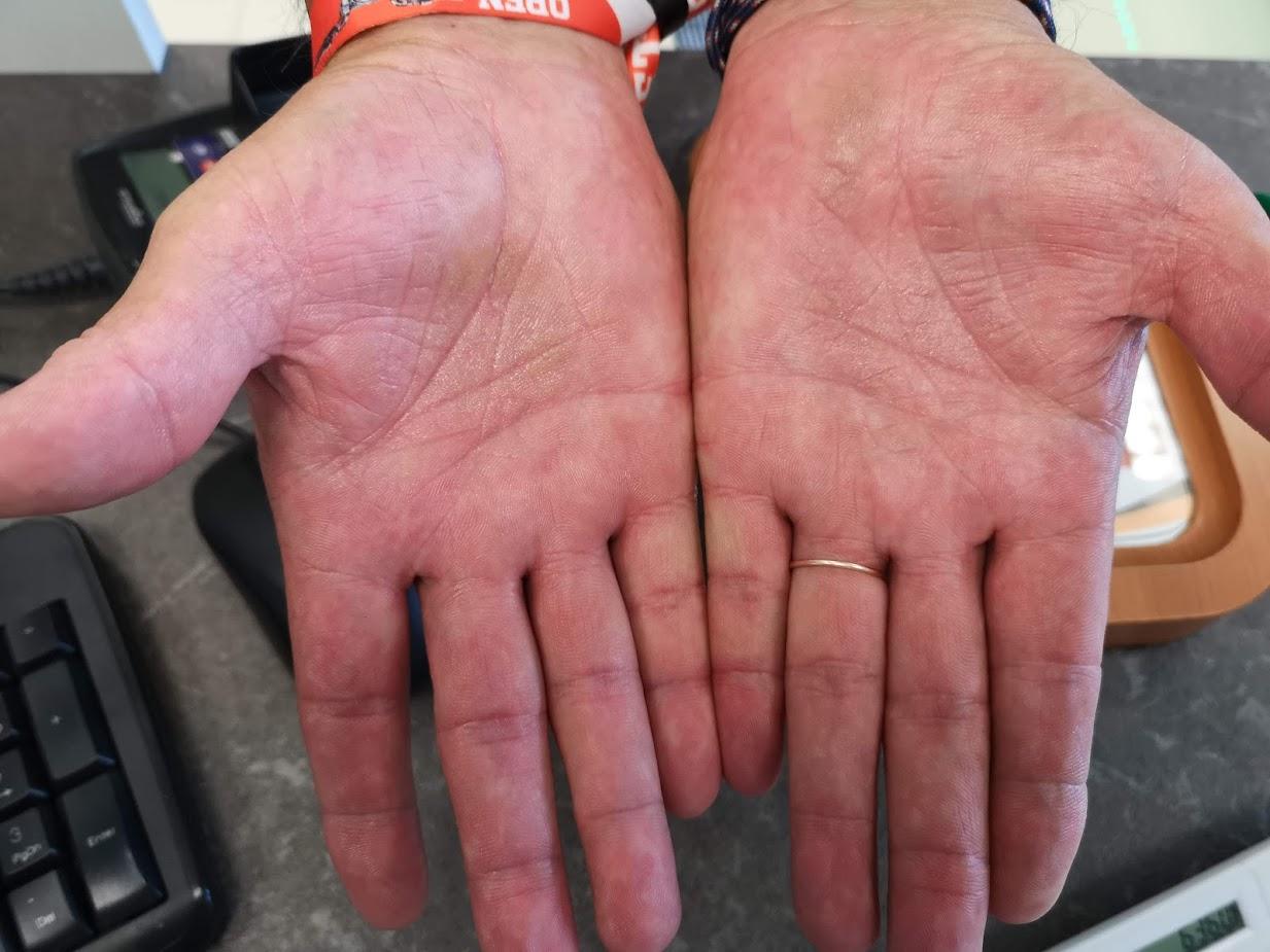 vörös foltok a kezén viszketnek, mint kezelni