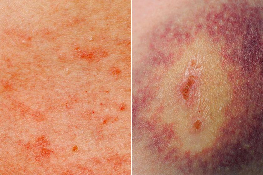 Vörös foltok a lábszáron cukorbetegséggel fotó