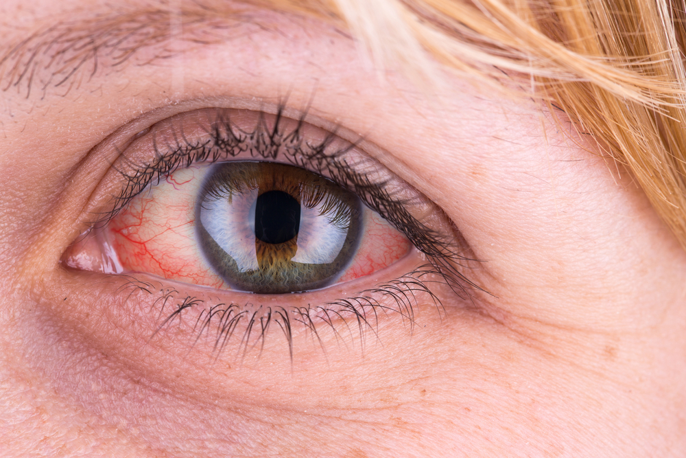 vörös foltok a szem körül a bőrön az arcbőr feszes és vörös foltok