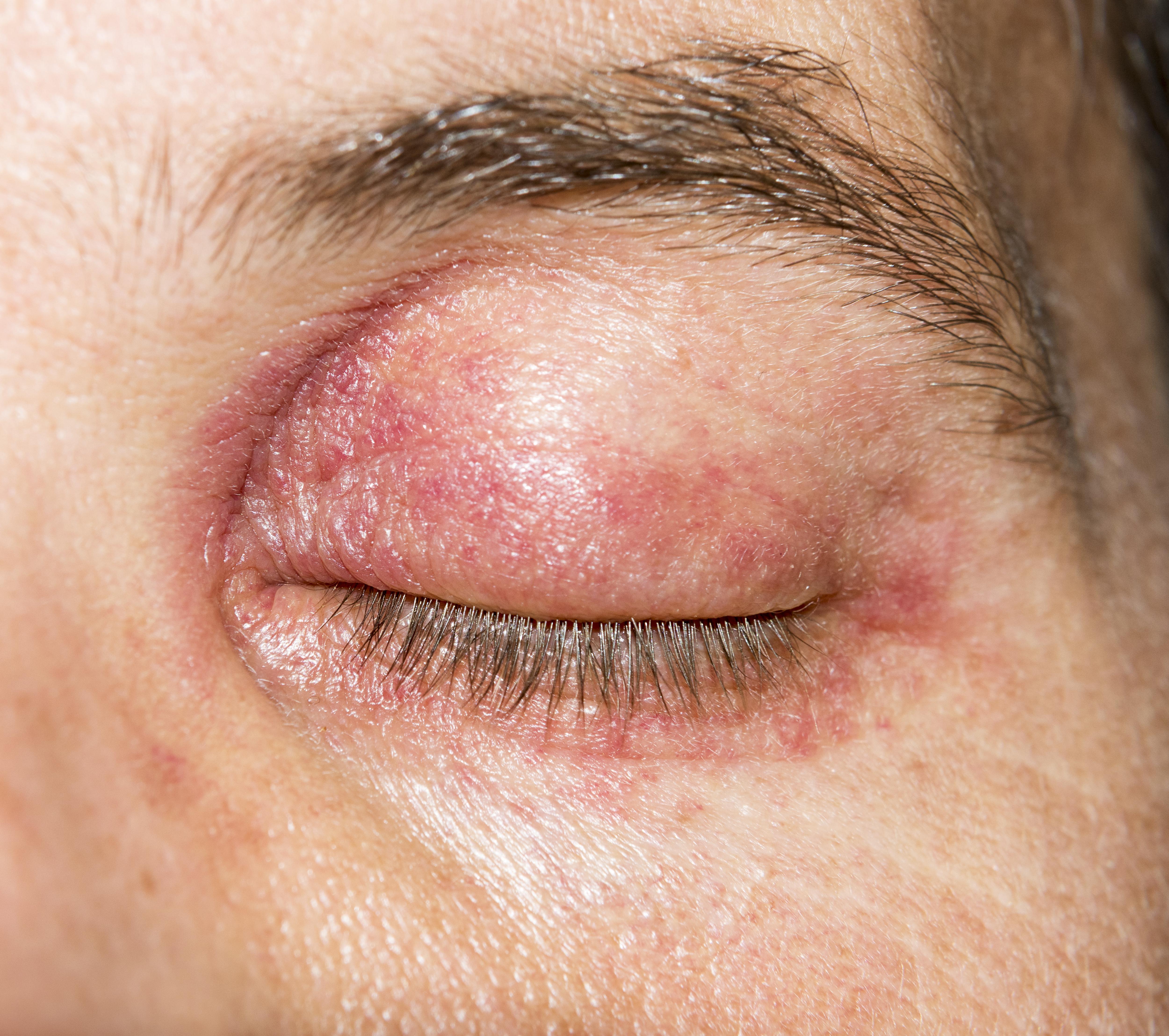 vörös foltok a szem körül viszketik mi ez mi a neve a pikkelysmr kezelsnek