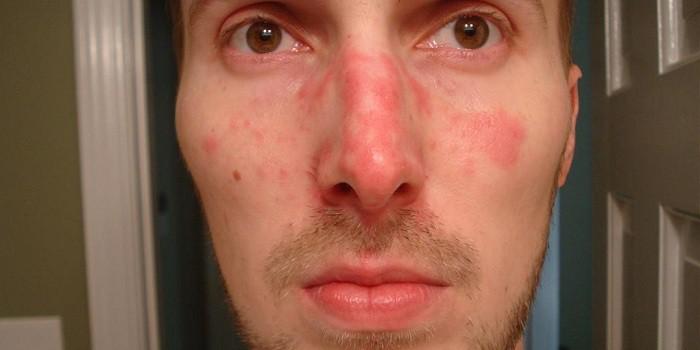 miért hámlik az arc vörös foltja vörös foltok jelennek meg az arcon a naptól