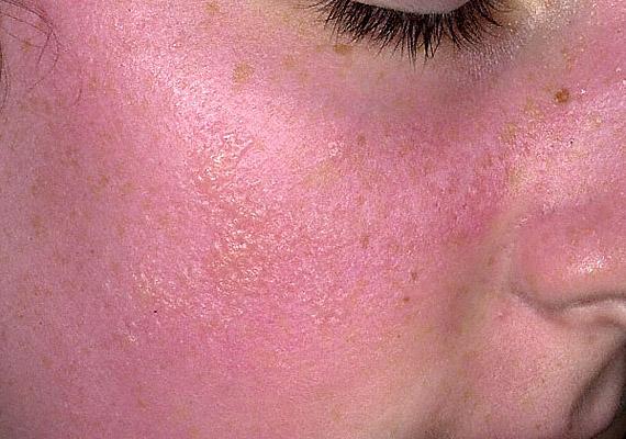 vörös foltok az arcon idegek fotó egyszerű népi gyógymódok pikkelysömörhöz