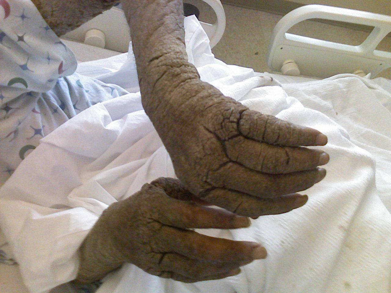 vörös foltok jelentek meg a lábán viszketés alatt